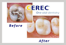 Teeth with fillings before & after