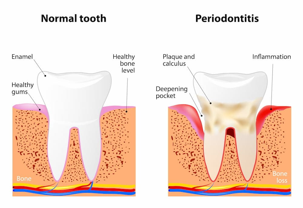 Illustration of a normal tooth & tooth with periodontitis