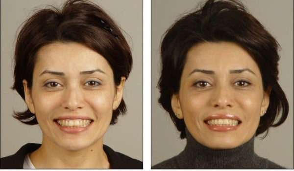 Before and after picture showing the effects of Oralift