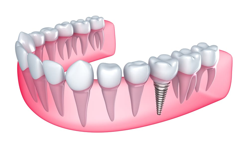 dental implant screwed into bottom set of teeth