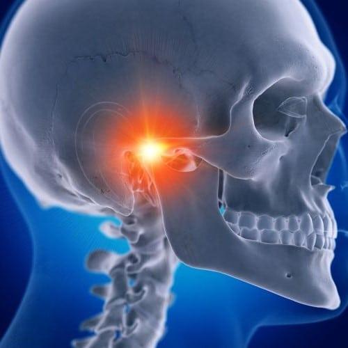 Illustration of a skull with temporomandibular joint