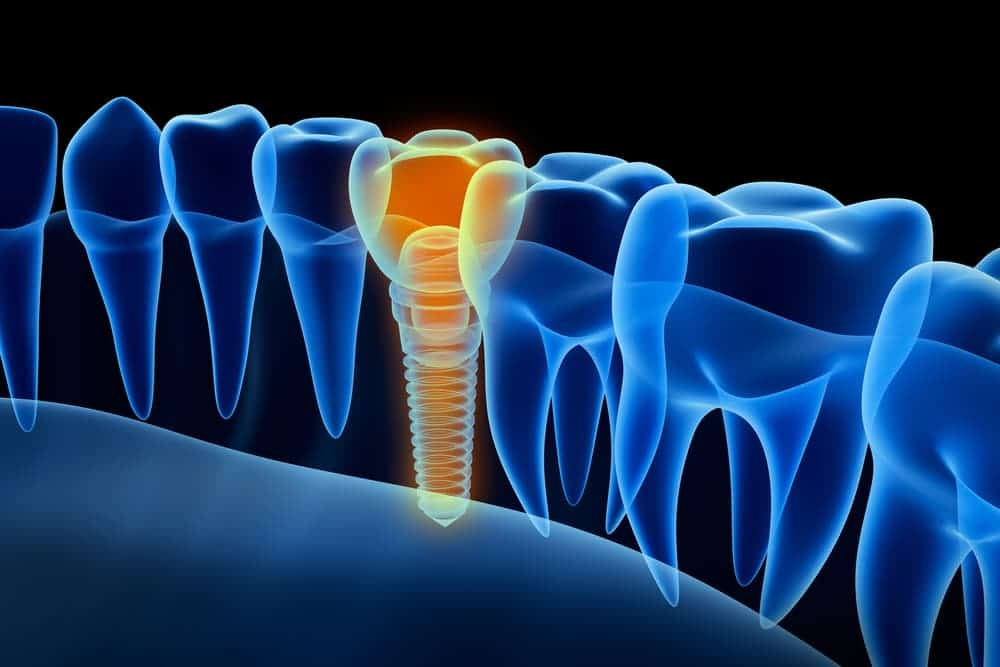 dental implant fastened into jaw bone