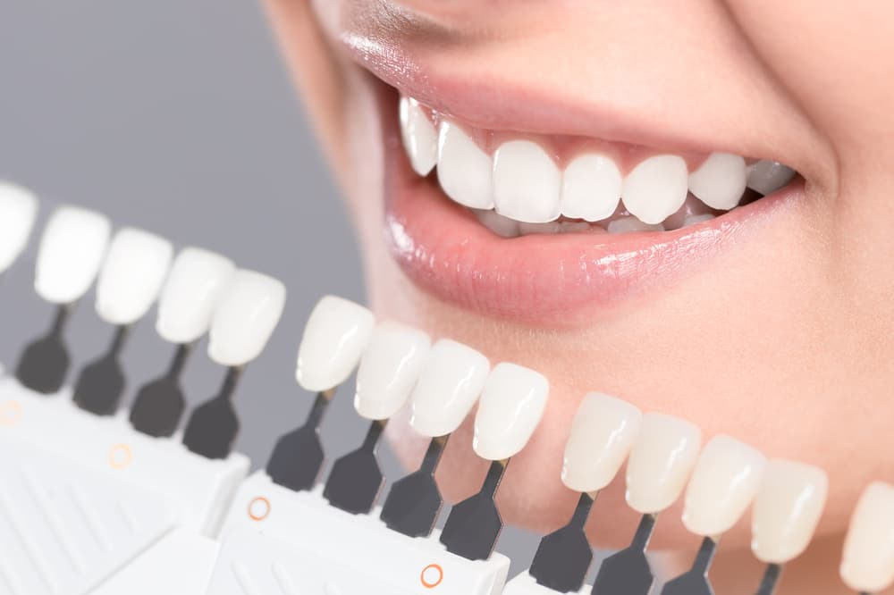 Woman smiling in front of different tooth colours to show how white they are