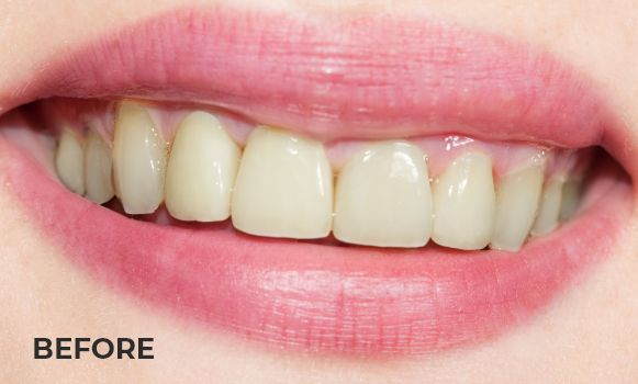 A set of teeth before being whitened