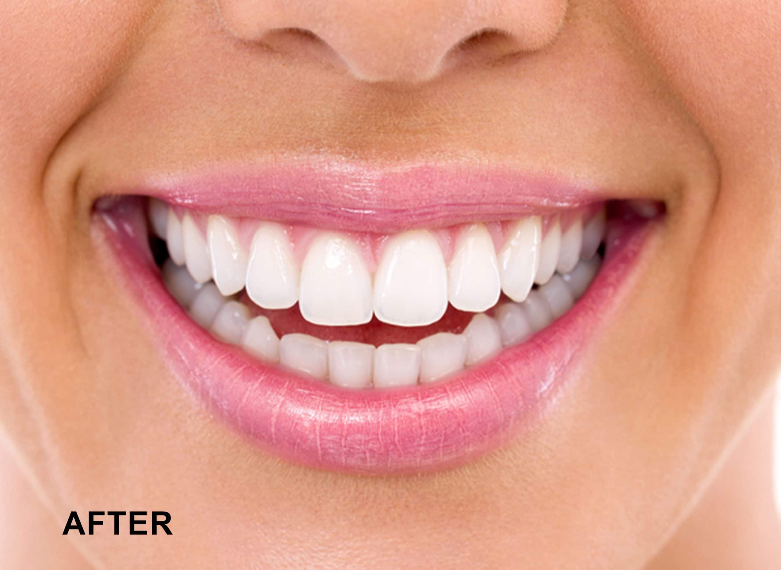 A woman's teeth before being whitened